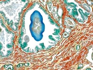 Причины заболевания острым простатитом