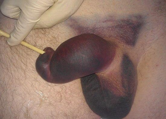 Перелом полового члена на фото