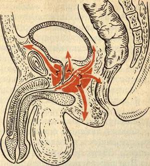 Абсцесс железы