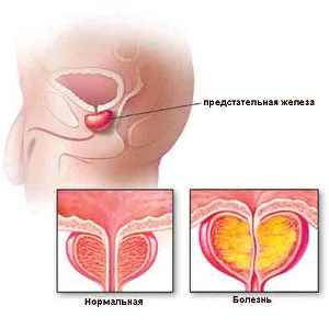 Симптомы аденомы простаты и лечение