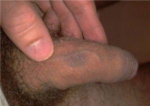 Ушиб полового члена