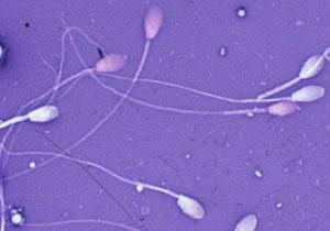 На картинке изображены активные сперматозоиды в малом количестве, что характерно для астенозооспермии
