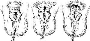Три формы эписпадии
