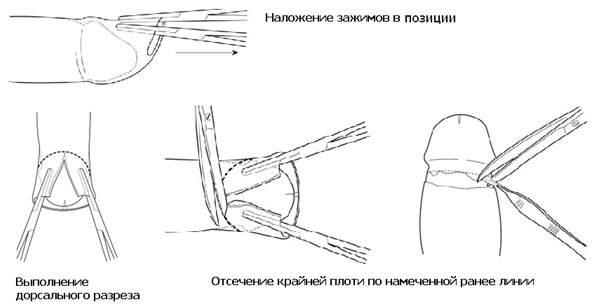 Дорсальный разрез — метод операции при фимозе