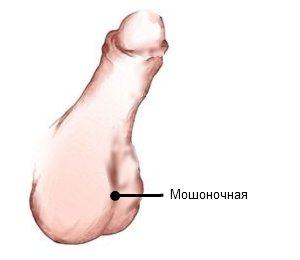 Изображение мошоночной гипоспадии