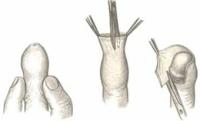 Как делается обрезание пениса?