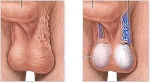 На рисунке показана болезнь сперматоцелле