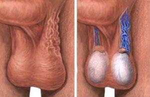 Варикоцелле — одна из причин возникновения тератозооспермии
