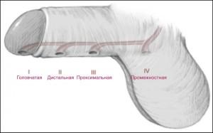 Гипоспадия — врожденная потология