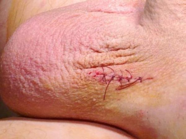 Варикоцеле после операции по Иванессевичу(2 фото со статьи)