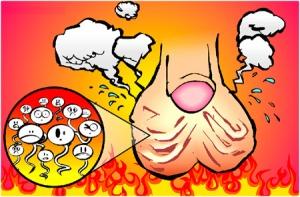 При варикоцеле повышается температура яичек