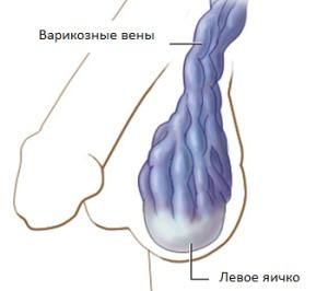 Примерное изображение вен характерных по состоянию варикоцеле 4-ой степени