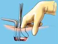 Операцйия при варикоцеле (ссылка на статью)