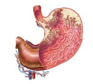 Сперматогенная гранулема (статья)