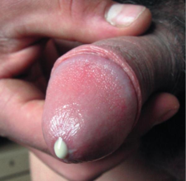 Гоннококовая инфекция (информационная статья о баланопостите с фотографиями)