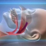 Рак гортани (виды операций)