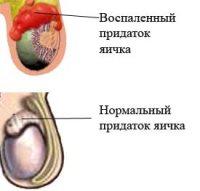 Эпидидимит — болезнь воспаления придатка яичка
