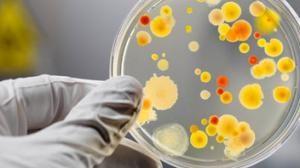 Существует более сотни разновидностей папилломавируса.