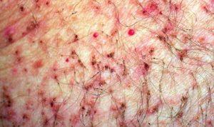 Последствия укусов паразитов при фтириазе на фото