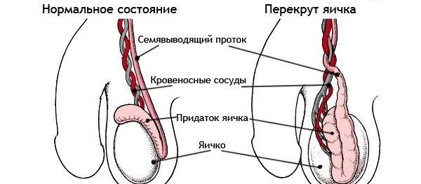 Перекрут яичка и здоровое яичко