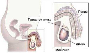 Эпидидимит обычно поражает придаток яичка