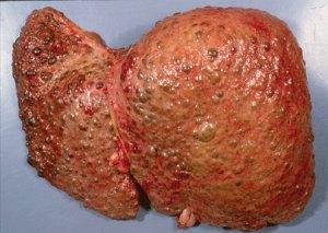 Гепатит G может приводить к циррозу печени