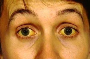 Желтушные проявления характерны при любых гепатитах, в том числе и при гепатите E