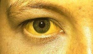 Желтушные проявления на коже и глазах — одни из проявлений гепатита B.