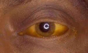 Один из характерных признаков гепатита D — желтушность