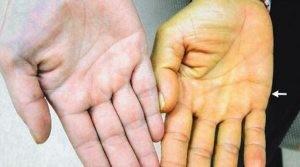 Желтушность — характерная черта для всех гепатитов, в том числе и для медикаментозного