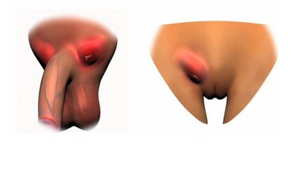 Венерическая лимфогранулема