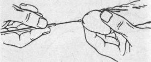 Для диагностики молочницы врач может назначить анализ мазка с урерты пениса.