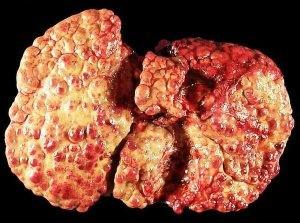 7 Медикаментозгный гепатит может приводить к циррозу