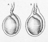 Заворот яичка — как определить и что делать?
