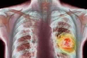 Рак легких в иллюстрации к статье о симптомах этой страшной болезни