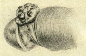 Рак полового члена (иллюстрация 1)