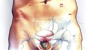 Рак простаты и методы его лечения (иллюстрация к статье)