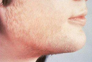 Гормональный всплеск приводит к росту волос на лице молодого мужчины