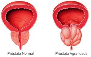 Простата (не воспаленная и воспаленная)