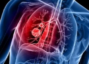 Рак легких - в чем его причины? Курени и другие опасные факторы