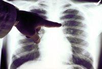 Рак легих на рентгеновском снимке