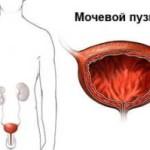 Мочевой пузырь человека - иллюстрация к статье о симптомах рака мочевого пузыря