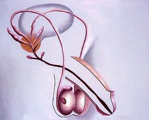 Раковая опухоль яичка классифицируется в 3 основные стадии и 3 подстадии