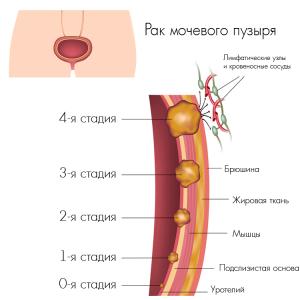 Как выглядят стадии рака мочевого пузыря - иллюстрация к статье о его лечении