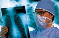 Какое проводят лечение при раке легкого?