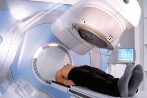 Лечение рака гортани аппаратом для лучевой терапии