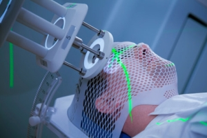На начальных стадиях рак гортани лечат лучевой терапией, после чего обращаются к хирургическому вмешательству