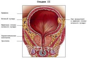 На второй стадии рак мочевого пузыря прорастает в мышечный слой