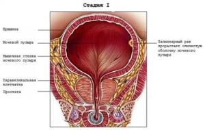 Первая стадия рака мочевого пузыря (Т1)
