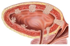 Рак мочевого пузыря - через какие стадии проходит пациент?